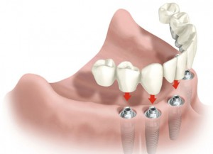 Implantes dentales Madrid